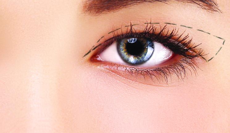 Upper Eyelid Crease | Oculoplastic Surgeon's Opinion