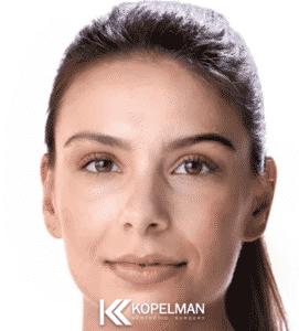 Facial Fillers Nyc Dermal Fillers New York City